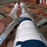 Zimmer leg brace - soft